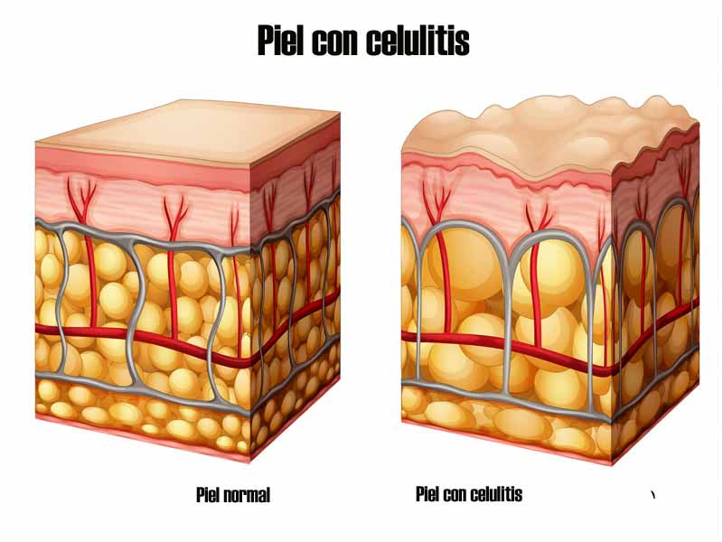 celulitis-en-el-hombre-3